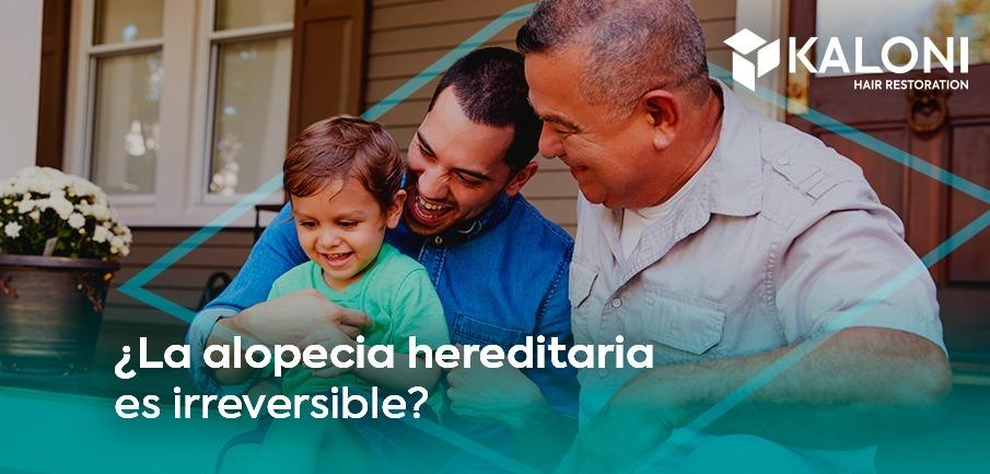 alopecia-hereditaria-portada