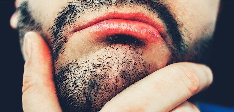 Implante de Barba en Kaloni