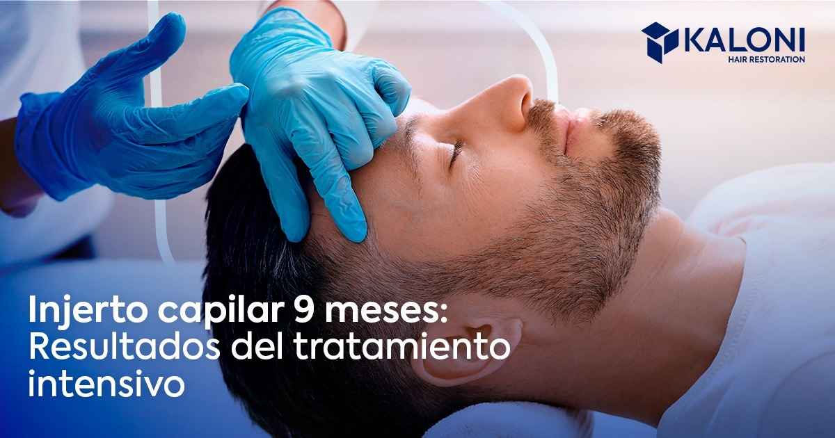 injerto-capilar-9-meses-fb