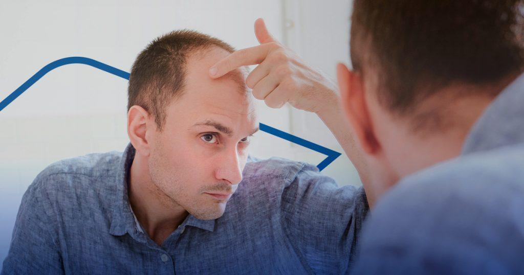 segundo injerto capilar - grado de alopecia