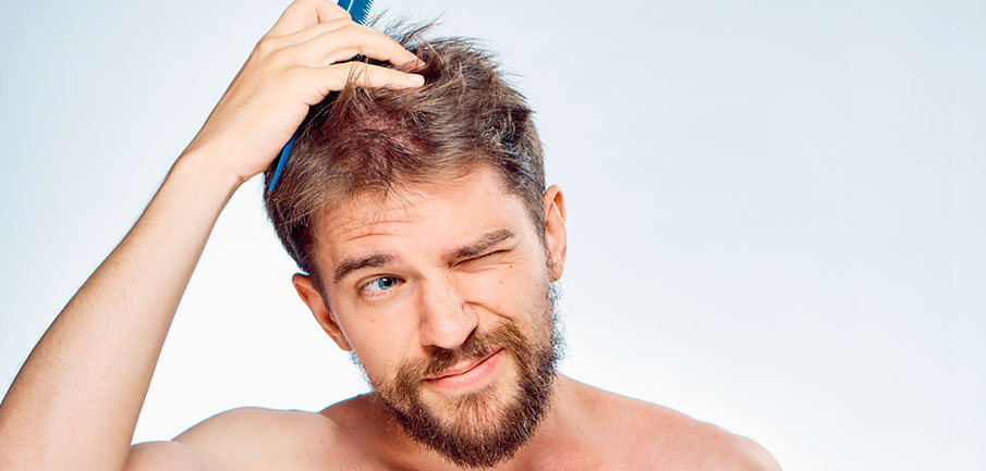 Do you know your degree of alopecia?