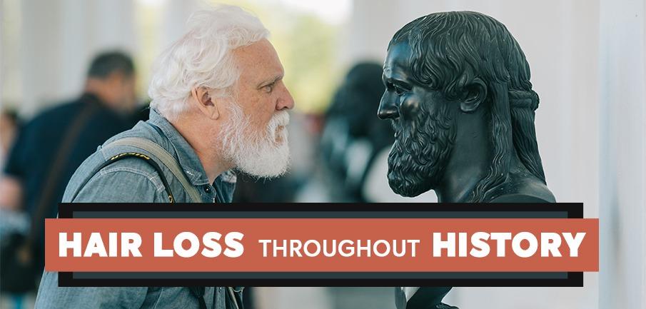 hair-loss-throughout-history