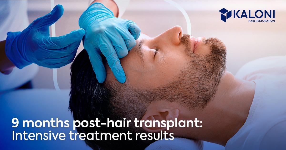 hair-transplant-9-months