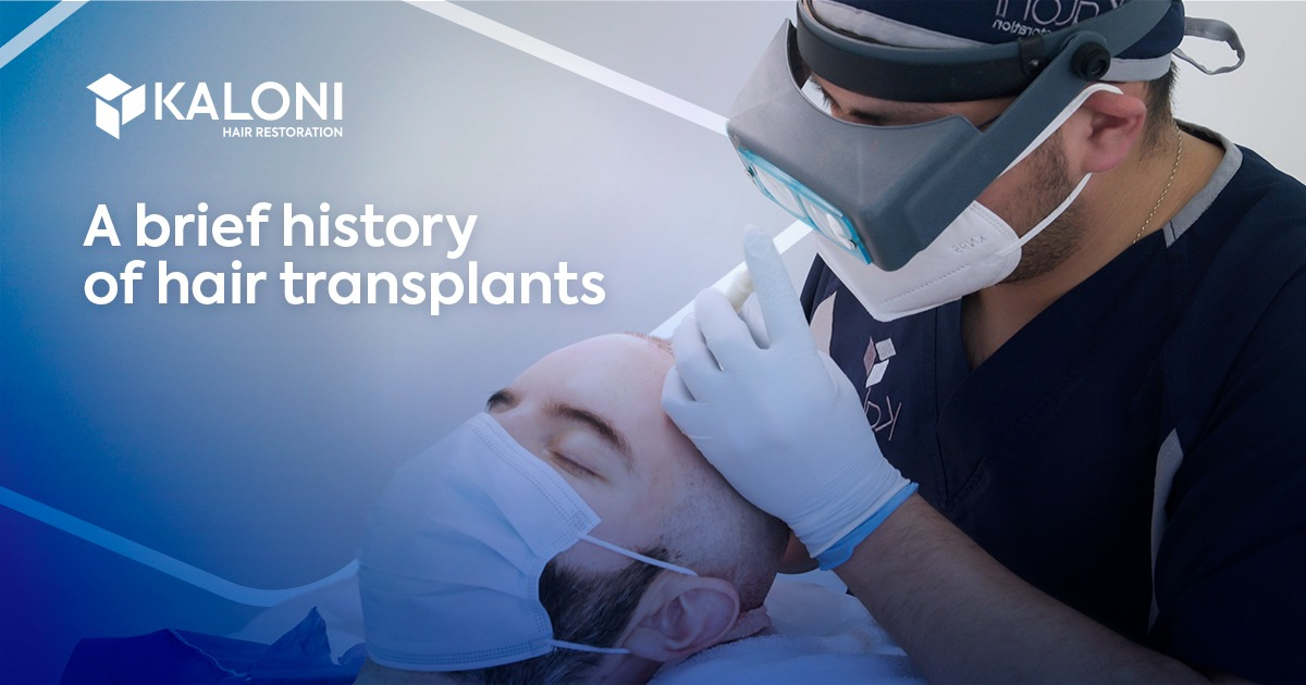hair-transplant-history-cover