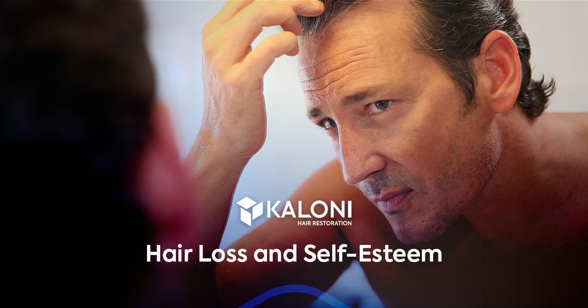 baldness-and-self-esteem