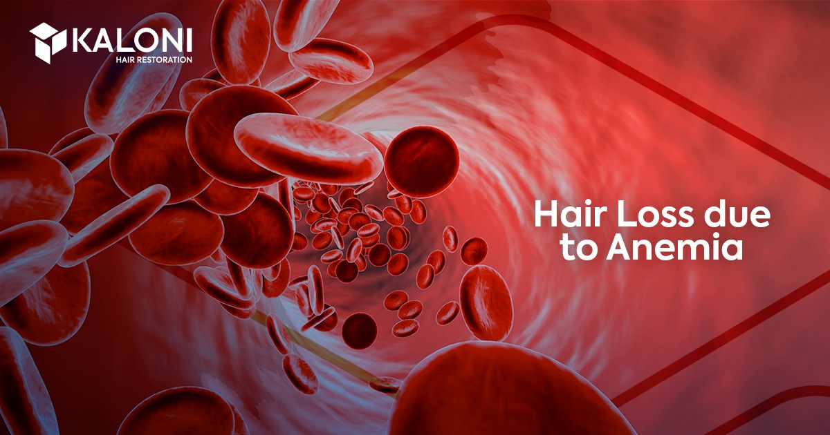 hair-loss-caused-by-anemia