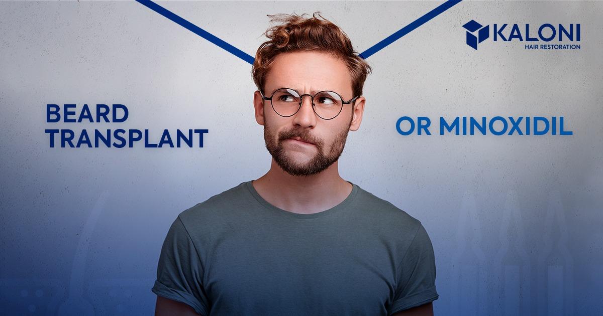 beard-transplant-or-minoxidil