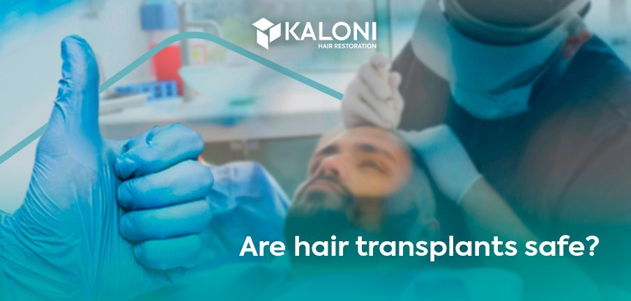 are hair transplants safe
