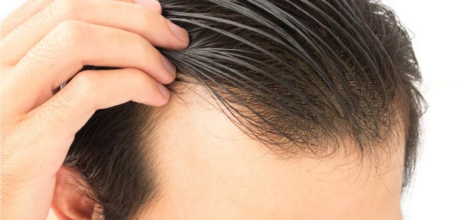 Por que o cabelo cai?