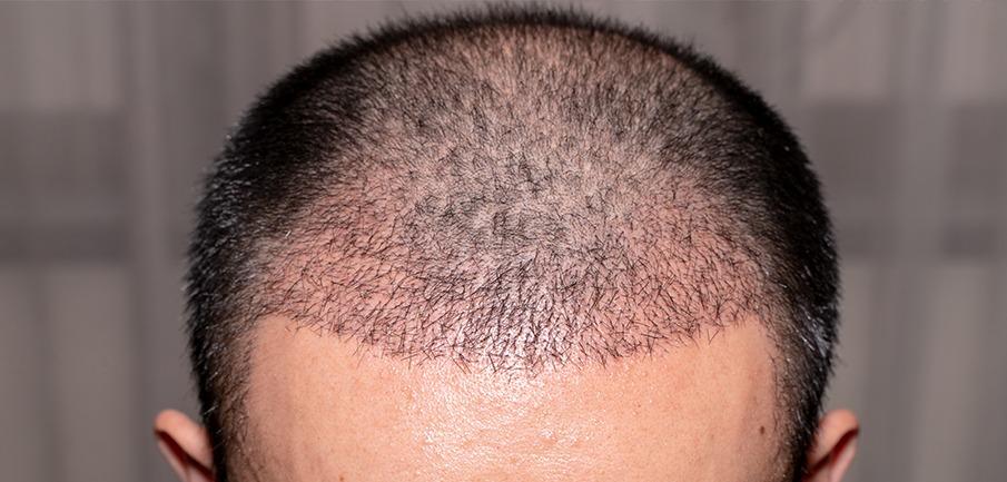 enxerto-capilar-1-mes