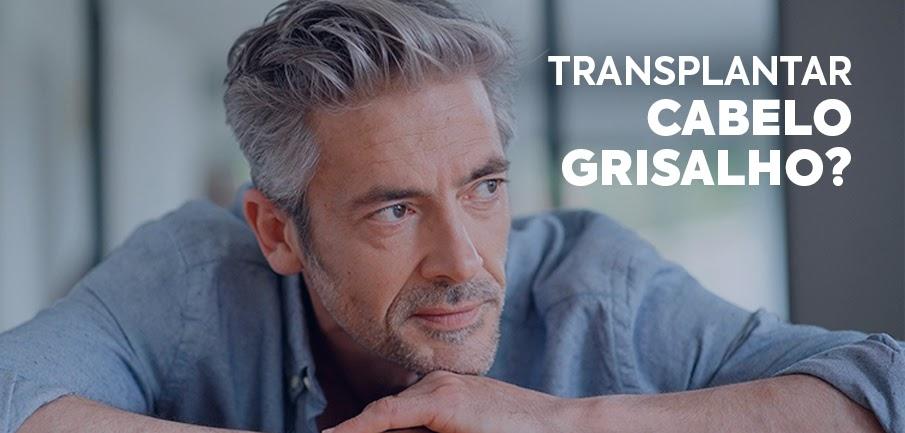 transplantar-cabelo-grisalho-2