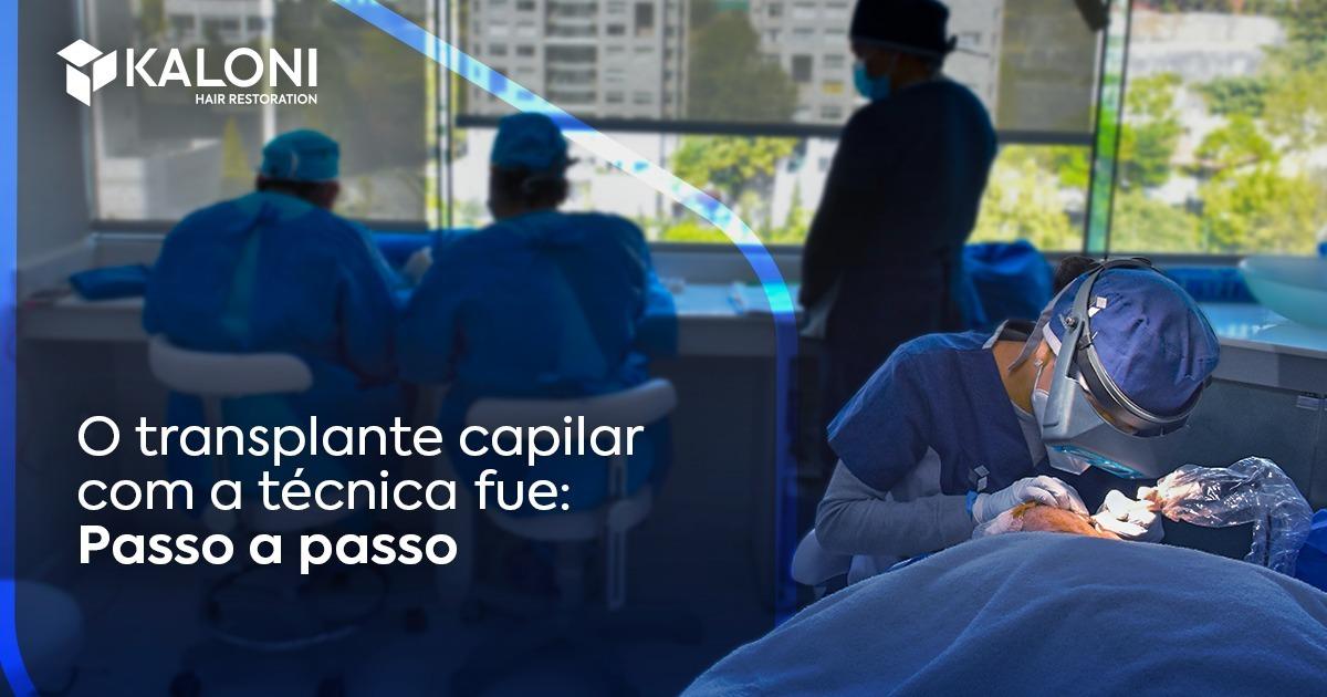 o-transplante-capilar-passo-passo